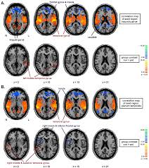brain sciences free full text altered intrinsic functional