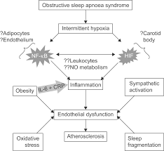 cardiovascular disease in obstructive sleep apnoea syndrome the