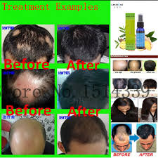aliexpress com buy 3pcs fast hair growth products for men hair