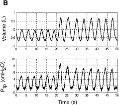 Recoil Table Articles Journal Of Applied Physiology