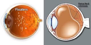 Eye Doctors In Hamilton Nj Explain Floaters Flashes