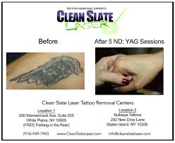 photos for clean slate laser tattoo removal westchester yelp