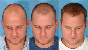 dhi hair transplant reviews why the transplanted hairs do not fall hair transplant dubai