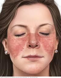 beauty sle programs lupus symptoms and causes mayo clinic