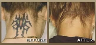 laser tattoo removal in nyc addresses unique permanent tattoo