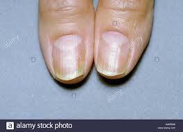 a picture of fingernails chronically infected with fungus causing