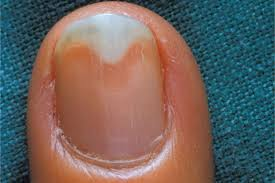 nail bed pain what is onycholysis health nails magazine