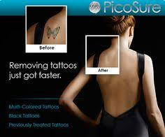 picosure laser tattoo removal available in south tampa http www