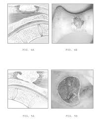 patent us20110239370 systems for relieving pressure sores and