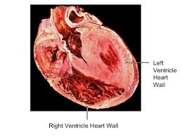 Gross Anatomy Of The Human Heart Heart Anatomy Written Copy
