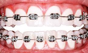 Best Way To Whiten Teeth At Home Why Is America Obsessed With Perfect Teeth Science Of Us
