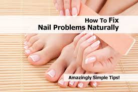 top 5 nail problems and their solution amazingly simple tips