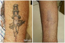 how much does tattoo removal cost 2013 great tattoo ideas and tips