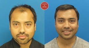 tyga hair transplant splendid dr hasson 5300 grafts one session fut 8 months post op