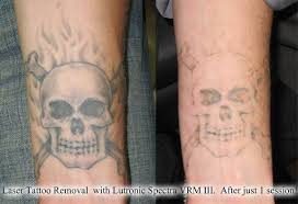 denver laser tattoo removal