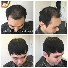 male hair extensions before and after pacific hair extensions and hair replacement vancouver bc 810