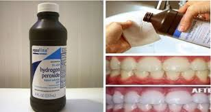 Teeth Whitening With Hydrogen Peroxide Discover Fantastic Powers Of Oxygenated Water For Health Beauty