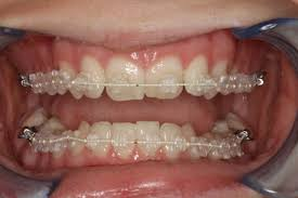 nickel free braces six month smiles clear braces dr dds