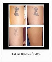 lexavega the best and effective way permanent tattoo remova