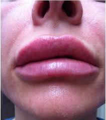swelling with dermal filler injections