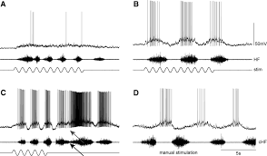 dense distributed processing in a hindlimb scratch motor network