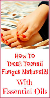 toenail fungus home remedies for better looking nails essential oils good for toenail fungus oil remedies and doterra