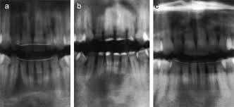 pedodontics thesis topics apical root resorption after orthodontic treatment a retrospective supplementary data