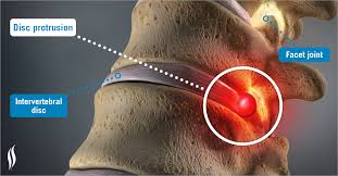 disc protrusion overview laser spine institute