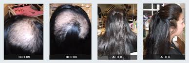 hair style for trichotillomania we provide treatment for trichotillomania patients