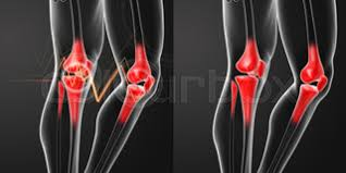 3d Knee Anatomy Human Knee Pain With The Anatomy Of A Skeleton Leg Stock Photo