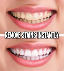 simple ways to whiten teeth home remedies and tips remove