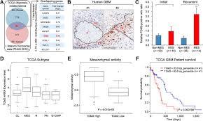 transglutaminase 2 inhibition reverses mesenchymal