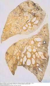 cystic fibrosis fishman u0027s pulmonary diseases and disorders 5e