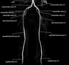 Radiology Anatomy Radiology Anatomy Images