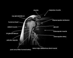 Mri Sectional Anatomy 145 Best Mri Images On Pinterest Medicine Med And Physiology