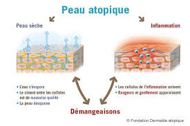 dermite du siege eczéma atopique et ostéopathie reflex osteo