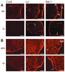 collagen iv is essential for basement membrane stability but