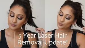 5 year full body laser hair removal update makeup by megha