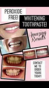 whitening natural teeth whitening wonderful natural whitening