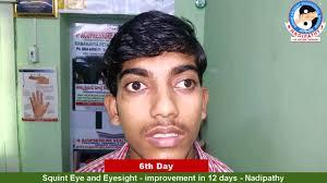 squint eye and eyesight improvement in 12 days nadipathy