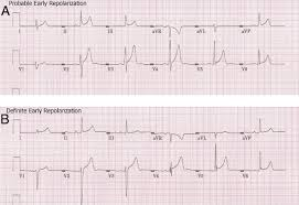 natural history of the early repolarization pattern in a biracial