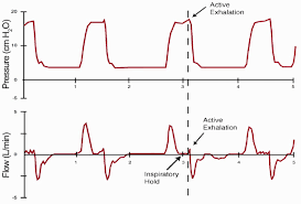 ventilator weaning protocol mechanical ventilation of the premature neonate respiratory care