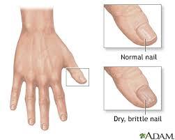 nail abnormalities uf health university of florida health