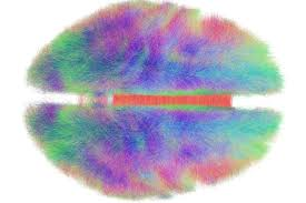 Brain Mapping Advocating A Computational Shift In Neuroscience Training