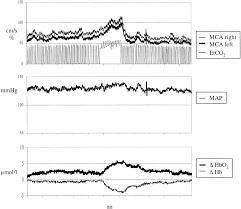 Blood Pressure Map Reduced Vasomotor Reactivity In Cerebral Microangiopathy Stroke