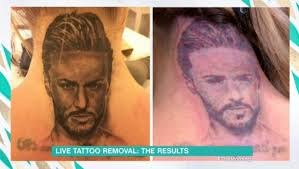 how does tattoo removal work how much does it cost and what will
