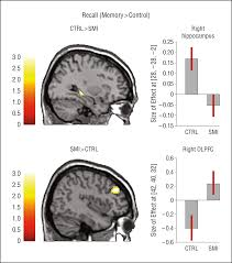 evidence of neuronal compensation during episodic memory in