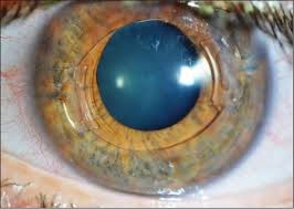 outcomes of toric iris claw phakic intraocular lens implantation