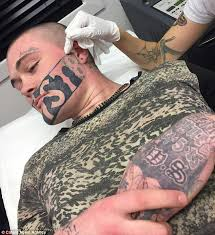 new zealand man with huge u0027devast8 u0027 tattoo gets it removed daily