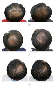 black seed for hair loss pumpkin seed oil shows promise as a hair loss remedy a review by